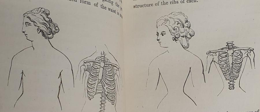 Showing the possible effects of a tight corset on a woman's body